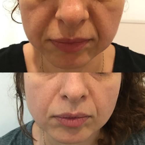 Зменшення носогубних валиків препаратом Mesosculpt (3 процедури)
