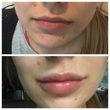 Корекція губ Львів