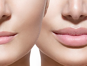 Contour correction of lips