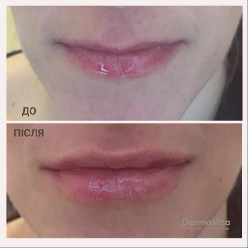 Корекція форми губ Juvederm
