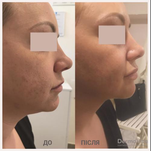 Зменшення жирових відкладень нижньої третини обличчя та підборіддя Mesosculpt +біоревіталізація Teosial + корекція губ
