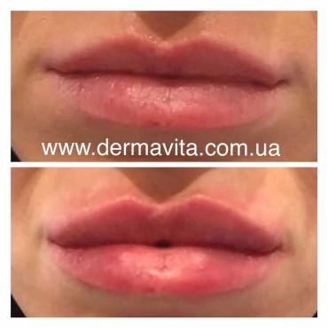 Корекція губ у Львові
